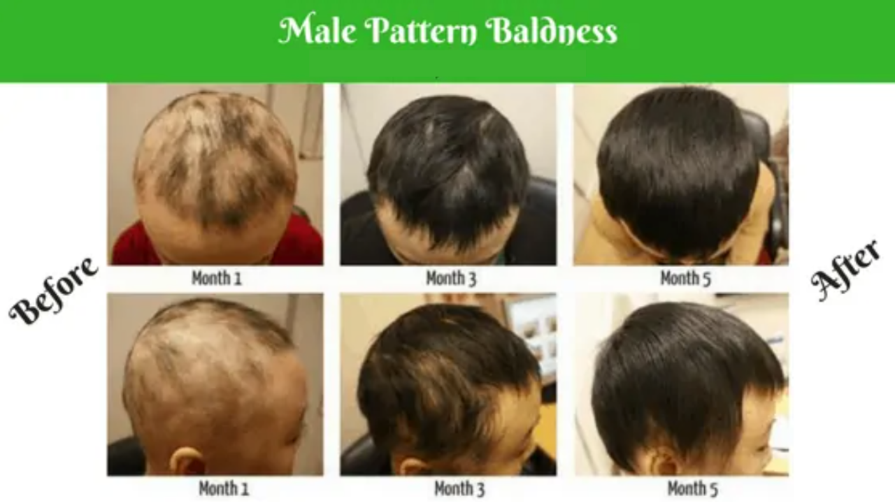 Patterns in Male Baldness