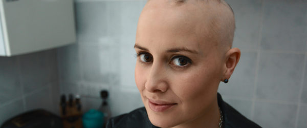 Areata and Androgenetic Alopecia in Men & Women (Meaning, Causes & Treatment)