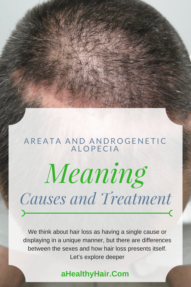 Areata and Androgenetic Alopecia in Men and Women
