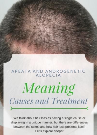 Alopecia areata diagnosis and treatment