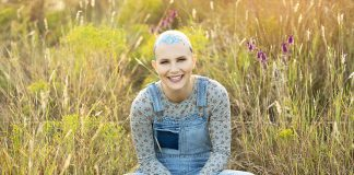 alopecia patient
