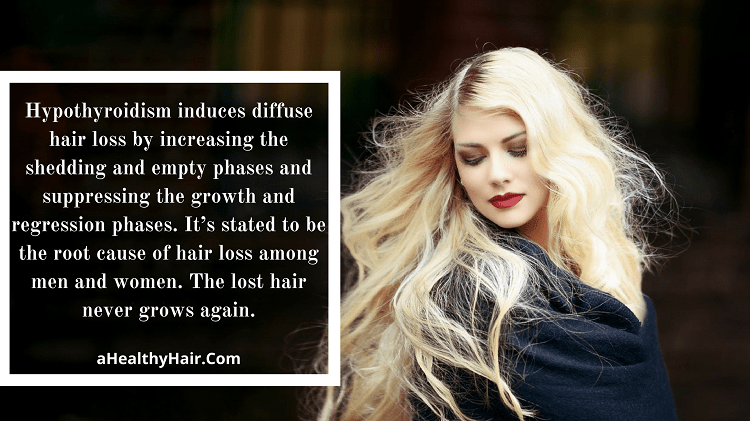 Hypothyroidism and Hair Growth Retardation