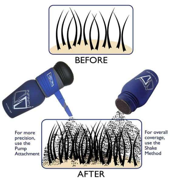 Infinity hair loss concealer
