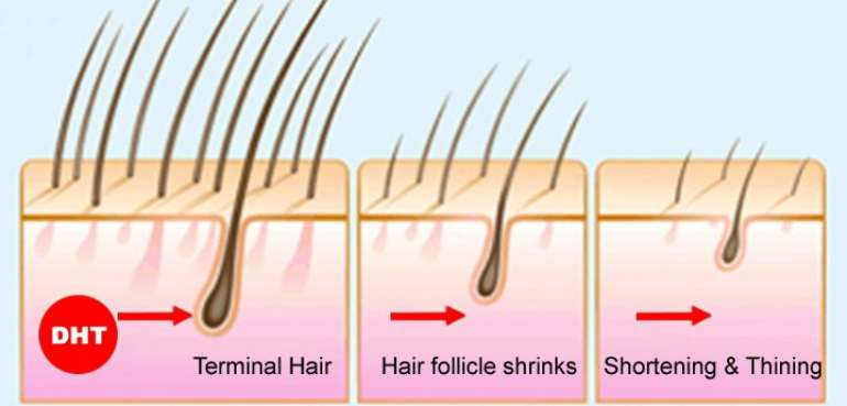 reasons for hair loss in men under 25
