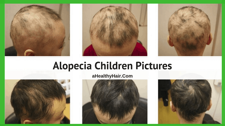 Alopecia Children Pictures