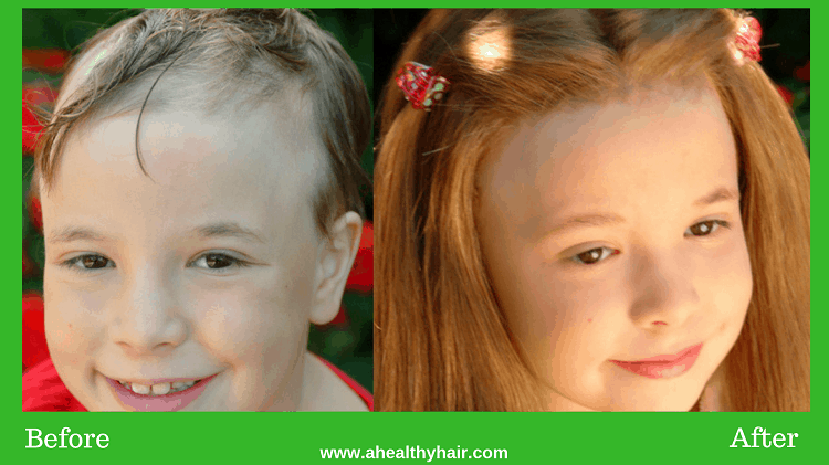 alopecia areata child treatment