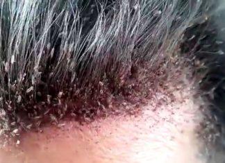 dry scalp vs. lice