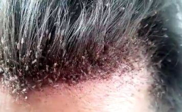 dry scalp vs. lice