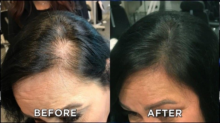 makeup to cover bald spots