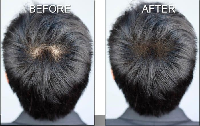 scalp makeup before and after