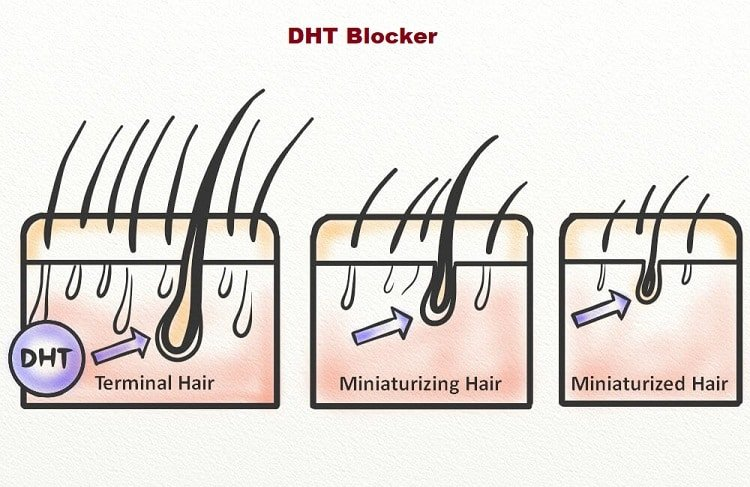 what is dht blocker?