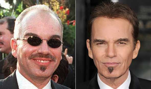 Billy Bob Thornton hair transplant surgery