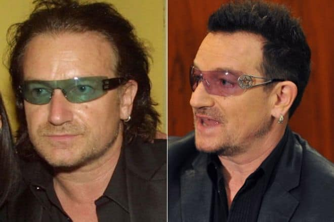 Bono hair transplant