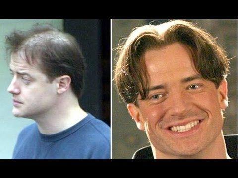 Brendan Fraser hair transplant