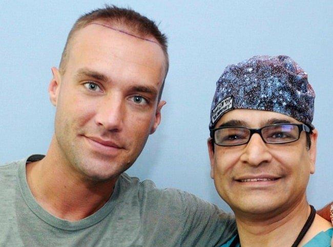 Calum Best hair transplant surgery