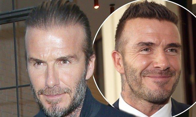 David-Beckham hair transplant