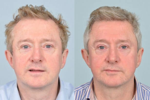 Louis Walsh hair transplant