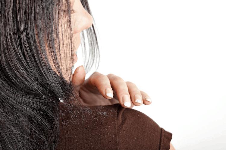 neem oil for dandruff